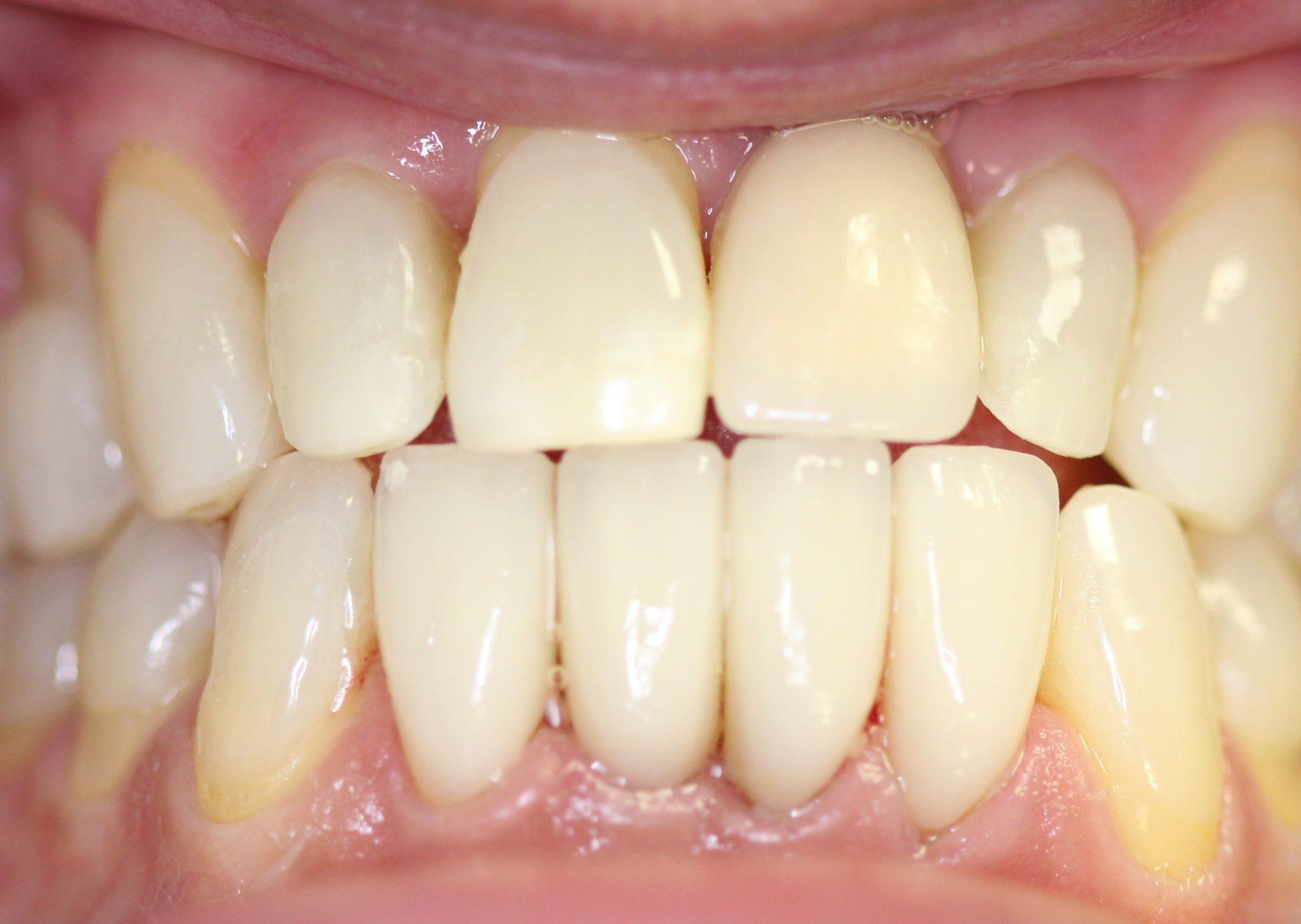 Carillas dentales porcelana