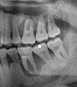 Quistes dentales