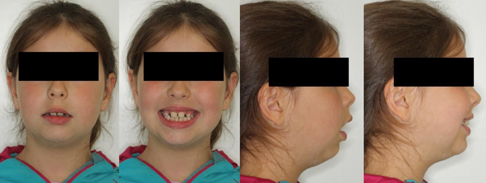 estudio ortodoncia fotos