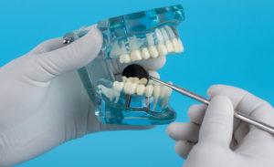 Reparación de prótesis dentales rotas en A Coruña