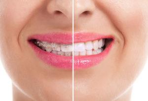 El antes y después de la ortodoncia