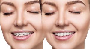 Ortodoncia antes y después