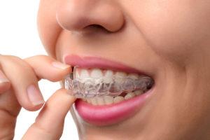 Cómo quedan los dientes después de Invisalign