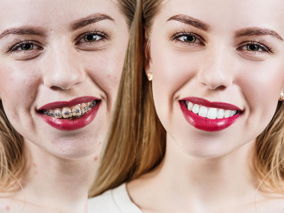 Cómo quedan los dientes después de los brackets