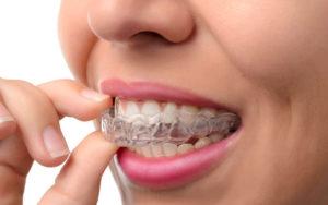Precio de la ortodoncia invisible en A Coruña para adultos
