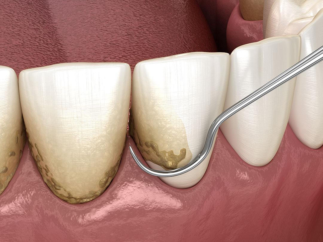Te ayudamos a combatir la periodontitis