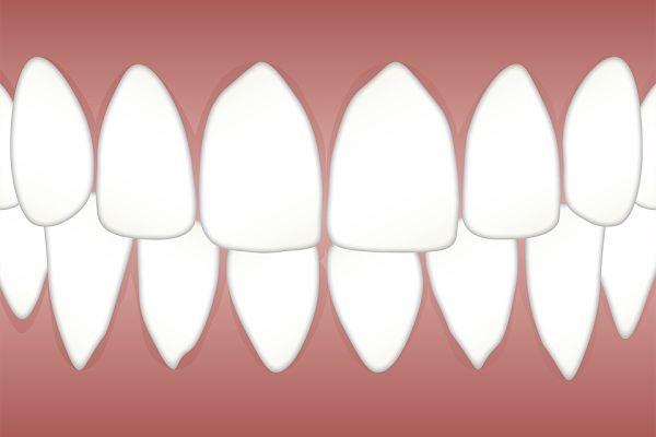 Antes y después de una periodontitis avanzada