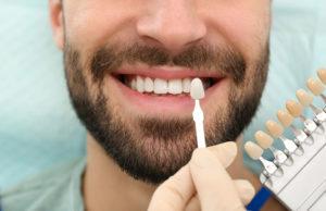 Carillas dentales para mejorar la estética dental