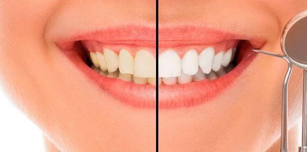 Confía en Domus Dental, la mejor clínica de estética dental en A Coruña