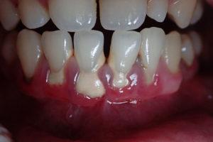 Enfermedades de periodoncia que tratamos en Domus Dental