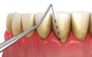 Tratamiento de periodontitis en A Coruña