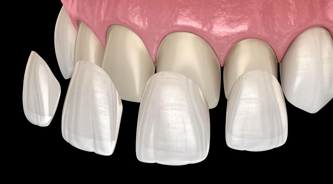 tratamiento de estética con carillas dentales