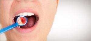 Tratamiento de gingivitis en A Coruña en clínica especializada