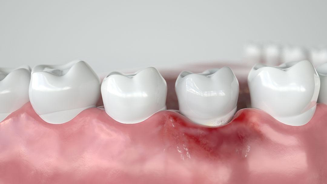 tratamiento de gingivitis en clínica