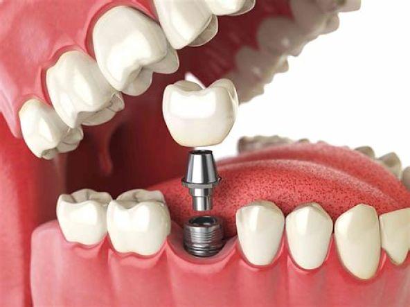 Qué tipo de implante dental es mejor