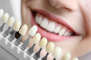 Qué es un implante dental atornillado