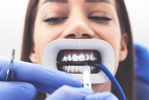 Pro y contra del blanqueamiento dental