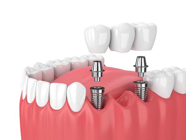 Colocacion durante el proceso de implante dental