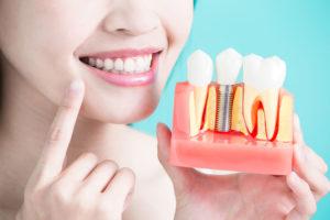 Cuál es el proceso de los implantes dentales