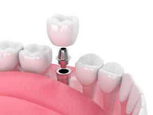 Cuánto se tarda en poner un implante dental