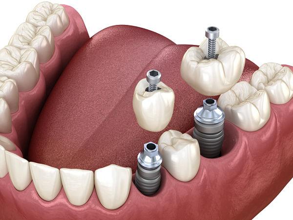 Domus Dental A Coruña es tu clínica especializada en poner un implante dental