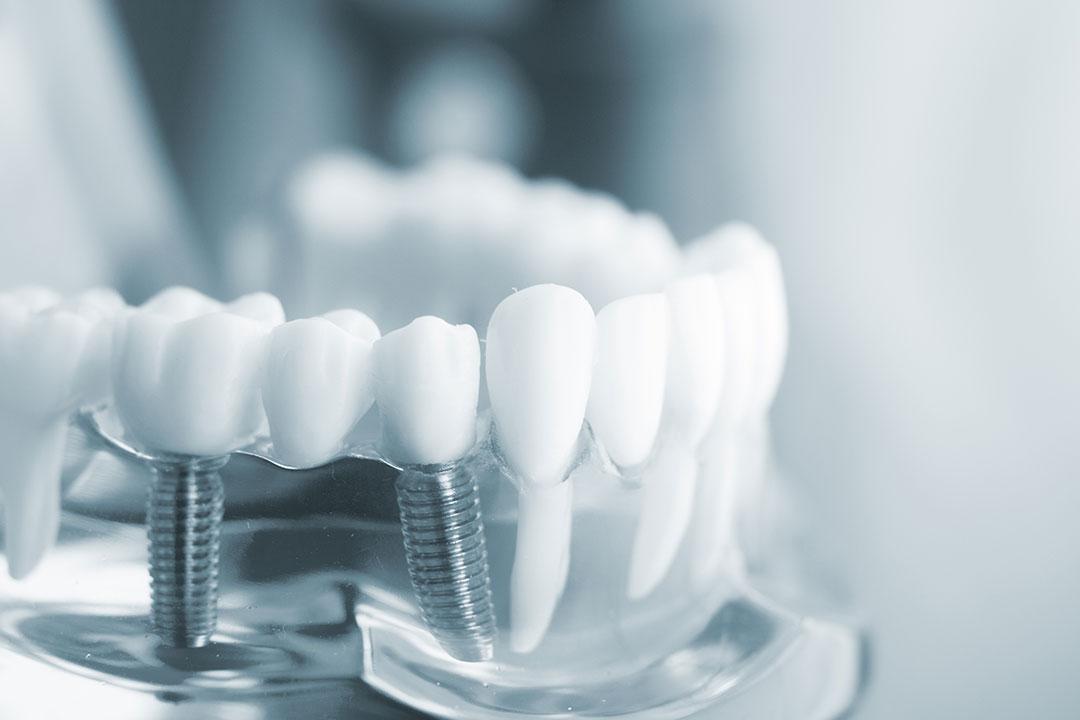 cuanto valen los implantes dentales en a coruña