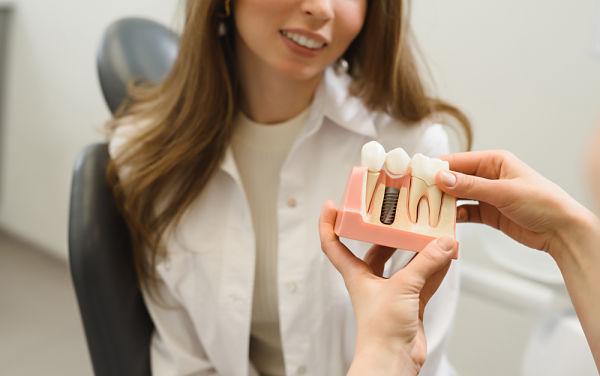 Cambiar un implante dental en Domus A Coruña