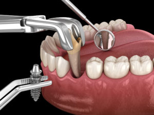 Duele un implante dental Domus Dental A Coruña