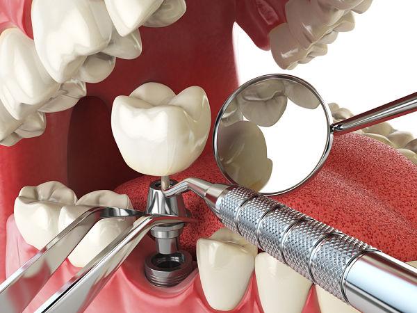 Duele un implante dental