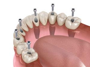 Se puede cambiar un implante dental