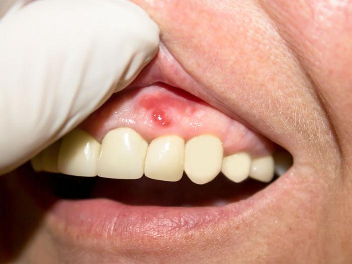 Somos una clínica especializada en periodoncia